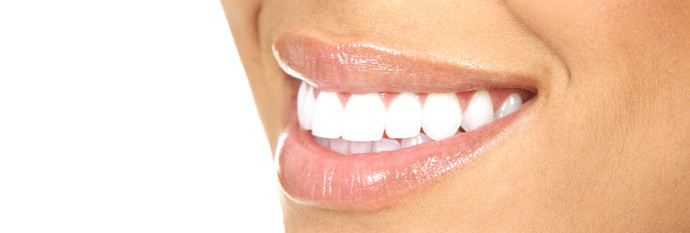Coquitlam Teeth whitening at the dentists office, teeth whitening coquitlam